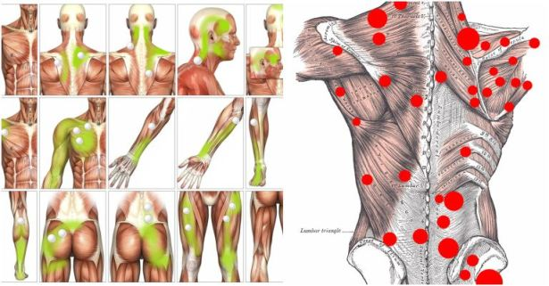 Myofascial-Trigger-Point-Release.jpg